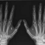 """Muž chtěl být ,,připojen"""" o něco více než ostatní a nechal si implantovat NFC čip do ruky"""